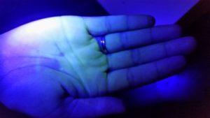 לאחר שטיפת ידיים שנייה ולפני של העדשות מגע הסקלרליות במרכז לקרטוקונוס דר' ניר ארדינסט