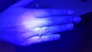 לאחר שטיפת ידיים שישית ולפני של העדשות מגע הסקלרליות במרכז לקרטוקונוס דר' ניר ארדינסט