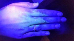 לאחר שטיפת ידיים שלישית/ רביעית ולפני של העדשות מגע הסקלרליות במרכז לקרטוקונוס דר' ניר ארדינסט
