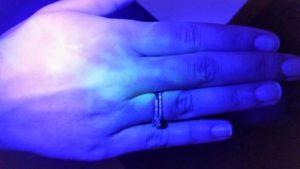 לאחר שטיפת ידיים חמישית ולפני של העדשות מגע הסקלרליות במרכז לקרטוקונוס דר' ניר ארדינסט